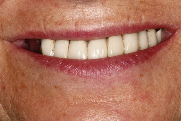 implant retained dentures before