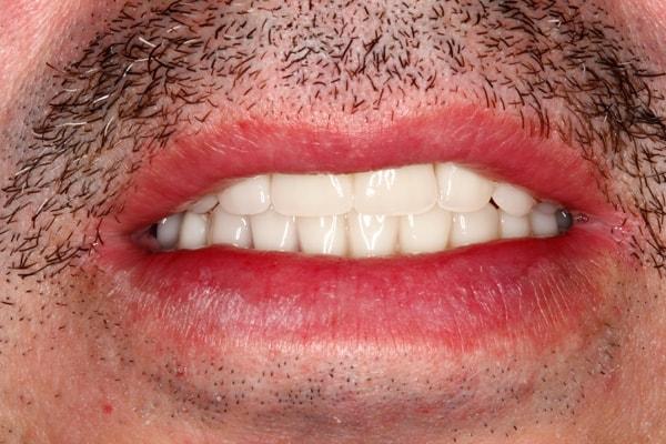 Denture After