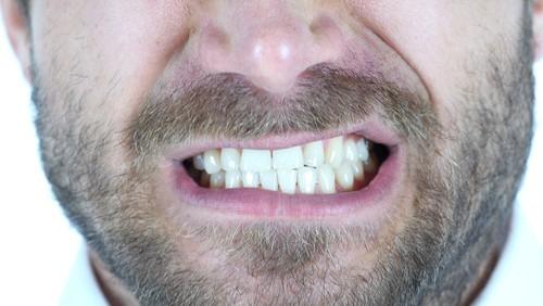 man grinding teeth